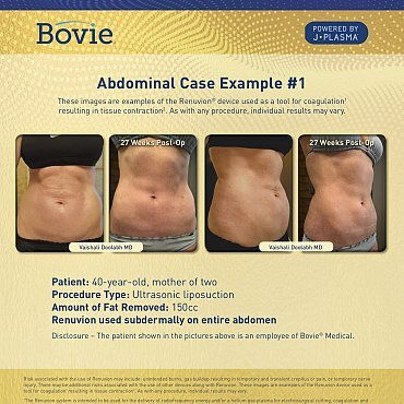 renuvion-before-after-abdominal-case-no1_mm0131-01_111518