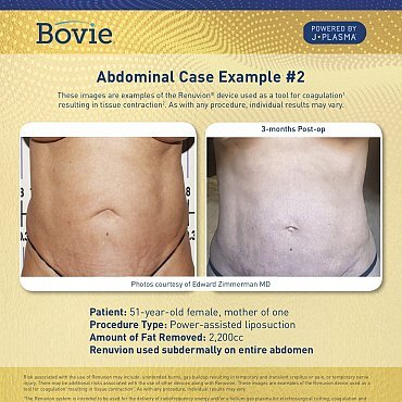 renuvion-before-after-abdominal-case-no2_mm0151-01_111518