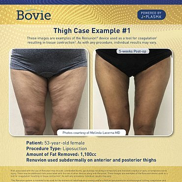 renuvion-before-after-thigh-case-no1_mm0155-02_111518