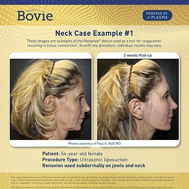 renuvion-before-after-neck-case-no1_mm0150-01_111518