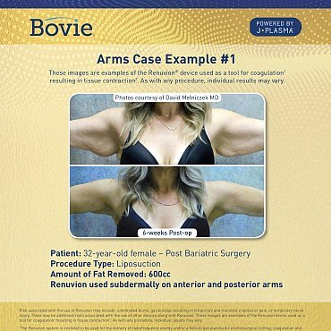 renuvion-before-after-arms-case-no1_mm0156-01_111518